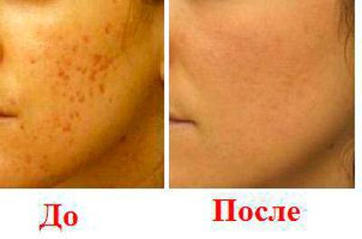 Состояние угреватой кожи до и после лечения маслом тимьяна