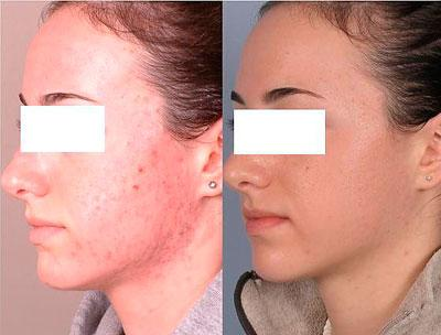 Результат использования оливкового масла для лица: угреватая и чистая кожа